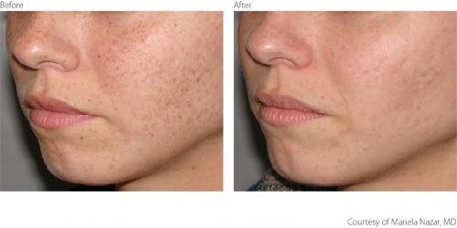 BeforeAfter1-Pigmentation-Freckles-Courtesy-of-Mariela-Nazar-M.D.Updated