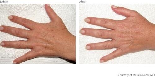 BeforeAfter2-Pigmentation-Hands-Courtesy-of-Mariela-Nazar-M.D.Updated