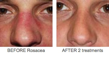 Rosacea_2_Before_and_After