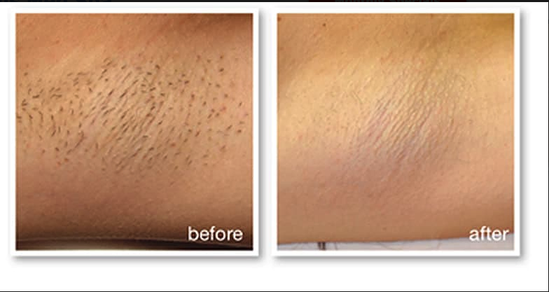 IPI Hair Removal 2- M22