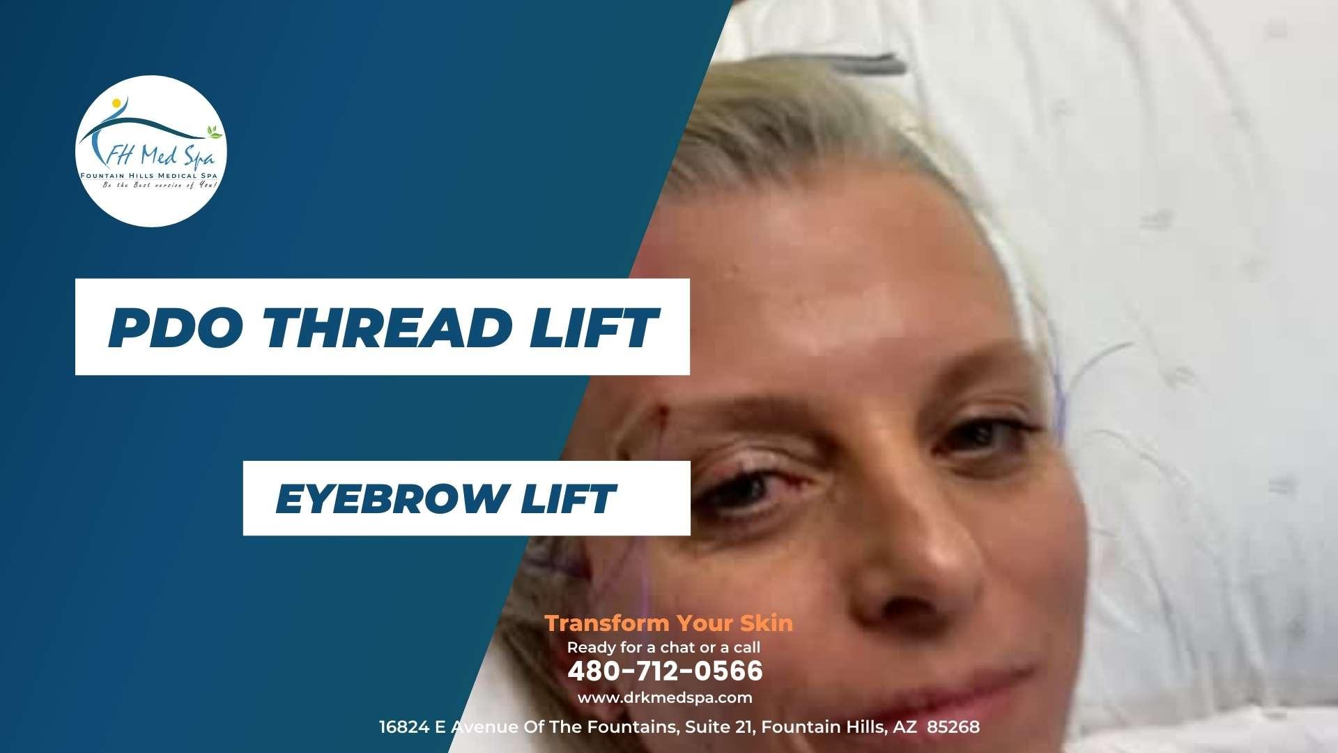 PDO Thread Lift - Eyebrow Lift - Dr. K MedSpa - Arizona, California